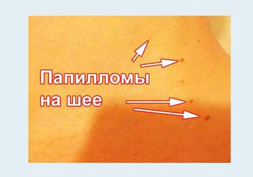 Liečba typu papilloma 35