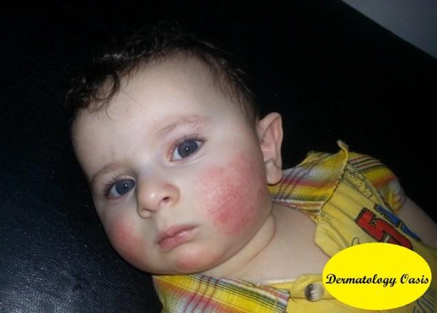 Infantile atopic eczema