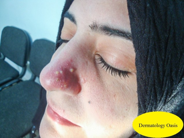 Localized rosacea