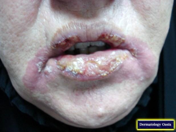 Lip Disorders Dermatology
