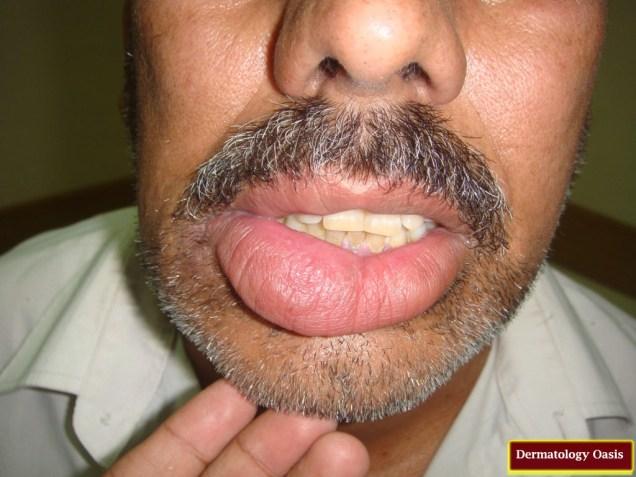 Cheilitis glandularis