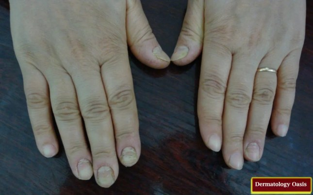 Chronic paronychia21