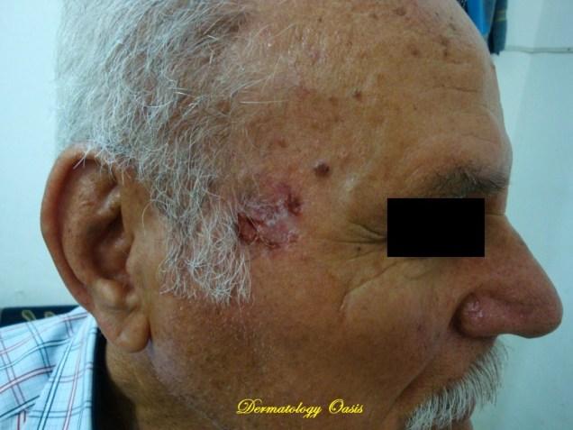 Ulcerative BCC