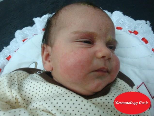 Infantile seborrheic dermatitis