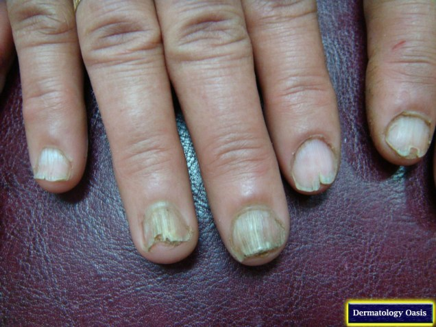 Nails in Darier's disease
