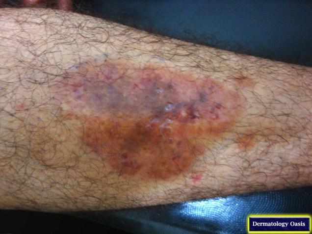 Necrobiosis lipoidica diabeticorum
