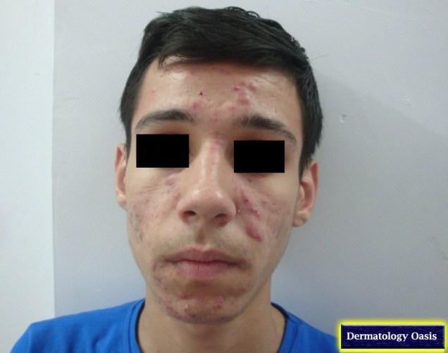 Nodulocystic acne