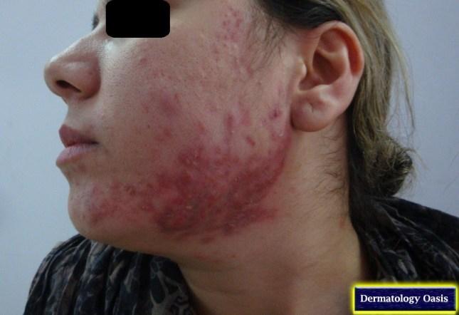 Nodulocystic acne4