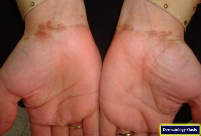 Post-lichen planus hyperpigmentation2
