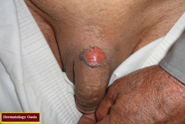 Squamous Cell Carcinoma complicating genital wart
