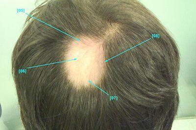 alopecia areata el mejor tratamiento