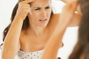 Adios a las marcas de acné con estos tratamientos