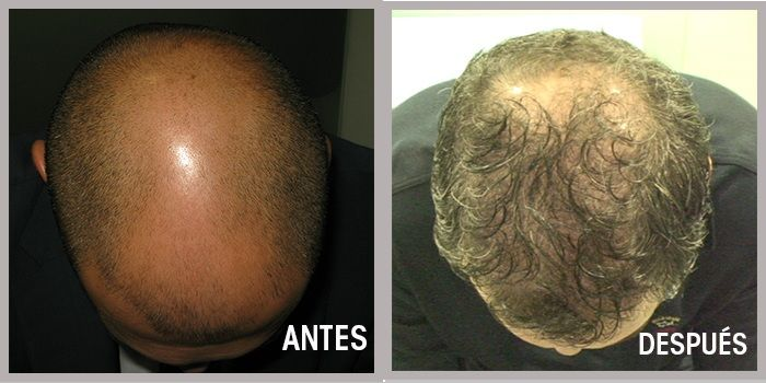 implante antes y despues