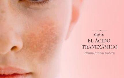 Que es el ácido tranexámico y como actúa contra las manchas faciales
