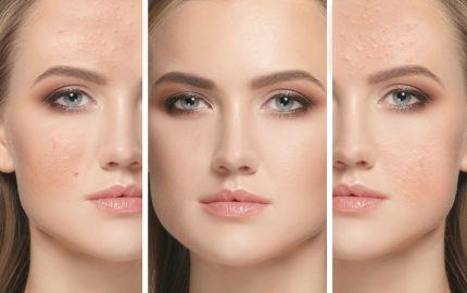Cómo debes maquillar la piel con acné