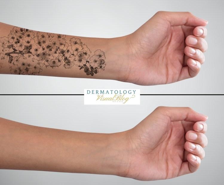 Método más efectivo para la eliminación de tatuajes