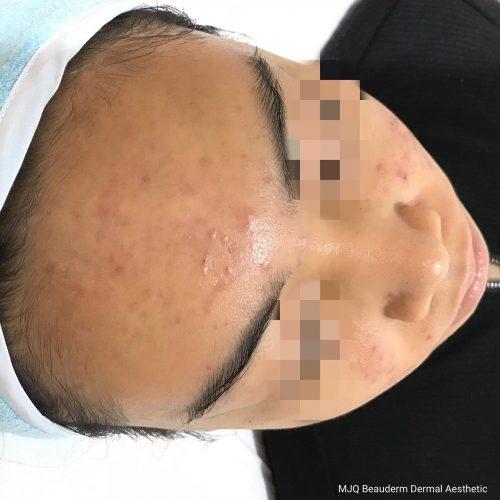 Pimple, acne, zit, blemish Clearskin progress cream