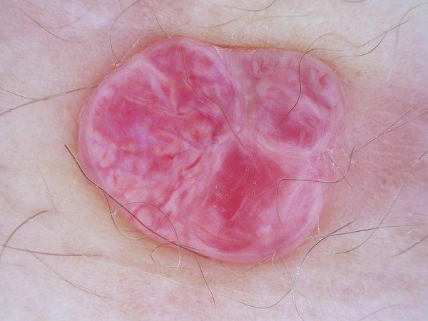 Ficha 4: Criterios dermatoscopicos en Angioma