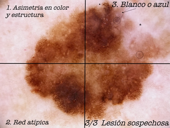 melanoma_ext_superficial53b mark