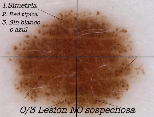 nevus_melanociticos_compuestos17b mark