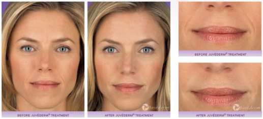 dcc_juvederm_results
