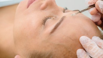 Blackheads in the Ears: How to Safely and Effectively Get