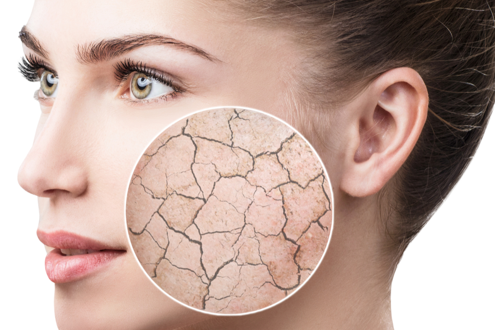 Dry Skin on Face: Causes, Treatments and Preventative Measures