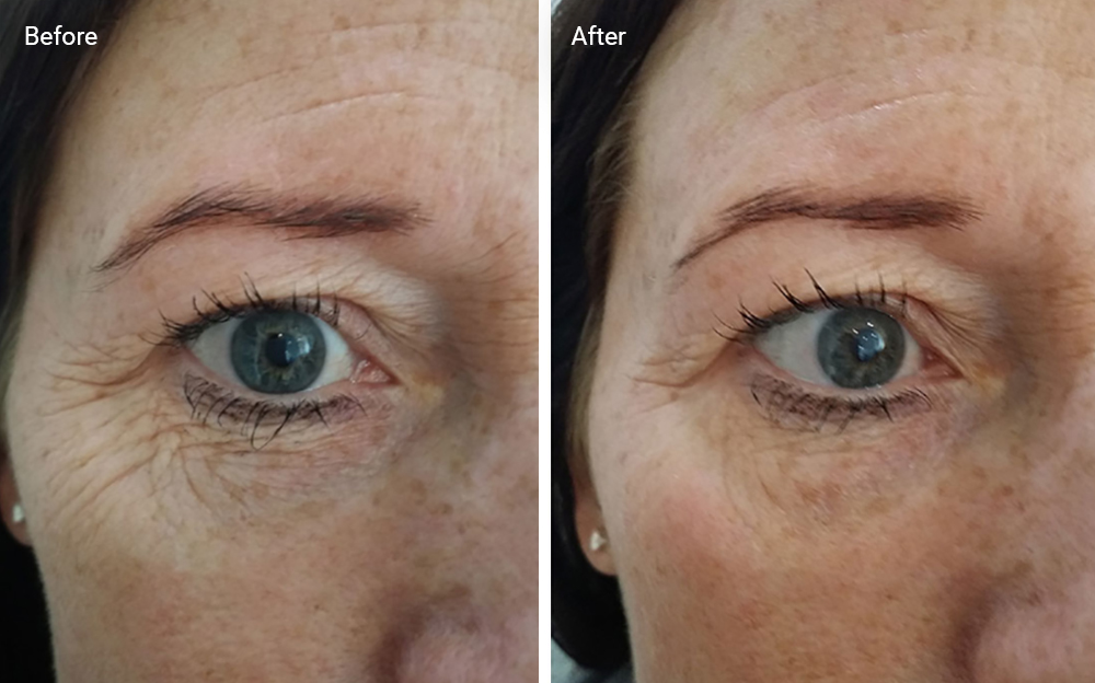 BEFORE an AFTER effects of using 5-in-1 skin tightening Device