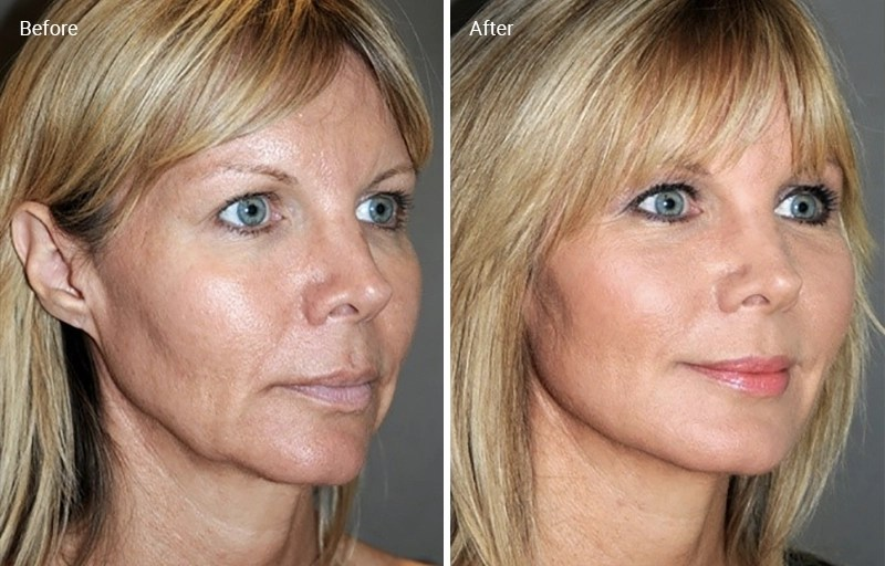 Laser Skin Tightening: How It Works, Results, Risks and Cost