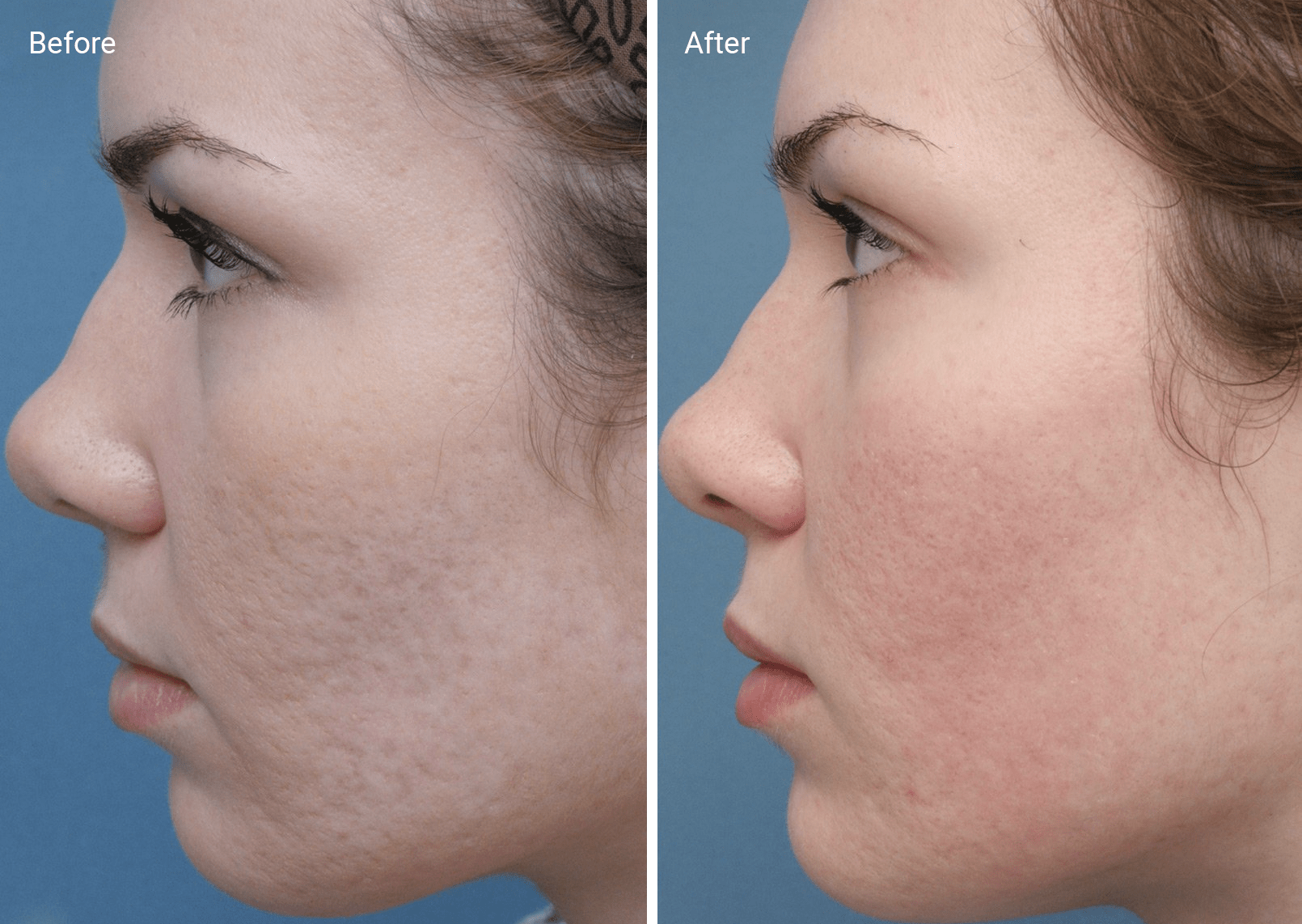 Chemical Peels for Acne Scars: Efficacy, Before and Afters, At-Home Uses