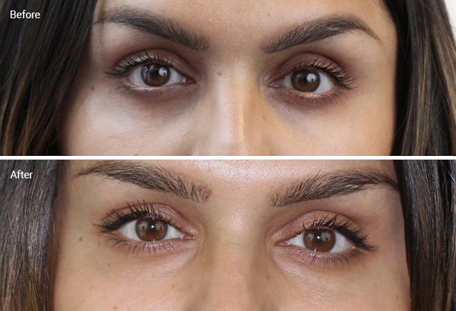 Laser Treatments For Dark Circles Are They Worth It Before Afters Cost