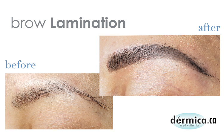 brow lamination faqs