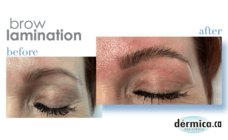 brow lamination edmonton