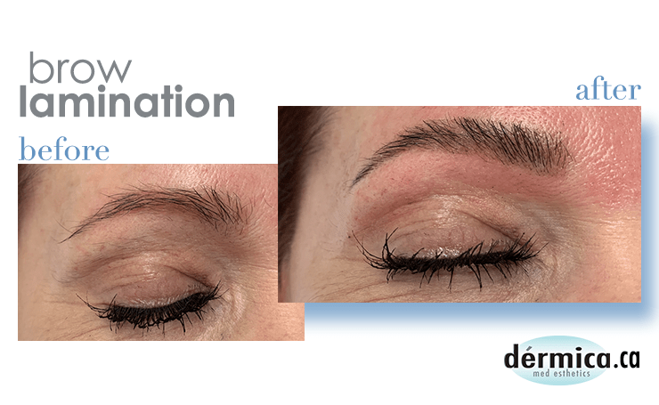 Is brow lamination safe?