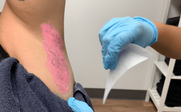 laser hair removal deals