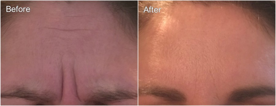 Botox 2 Before and After