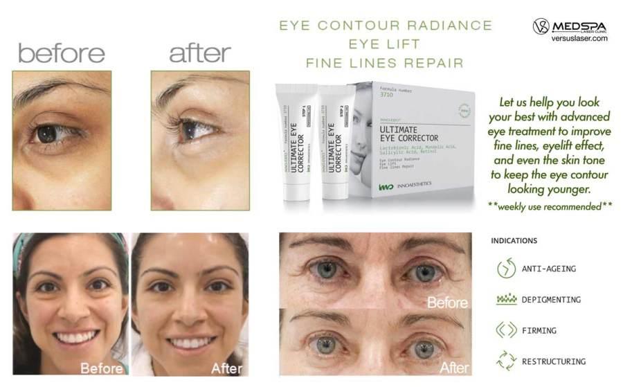 ultimate-eye-corrector-ad-web