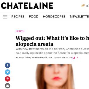 Dr Sam Hanna - Discusses Alopecia Chatelaine magazine