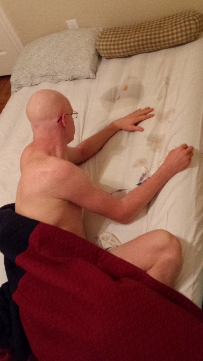 Derrick, Chemotherapy spill in bed