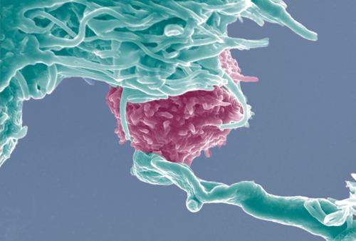 Câncer: NK, as notáveis células de defesa