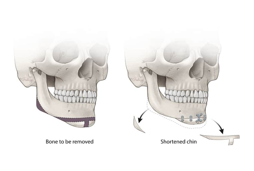 Chin augmentation. Image credit: Chris Gralapp