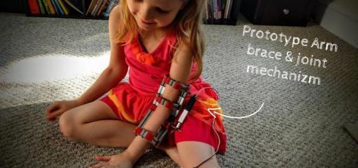 protesis1 - Construye una prótesis de rehabilitación con Impresión 3D y Arduino