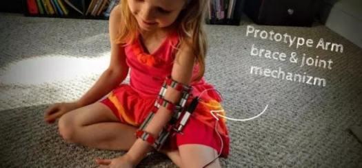 protesis impresa en 3d 800x373 - 10 ventajas de la Impresión en 3D
