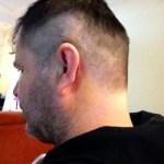 Imagem da cabeça do David, de perfil. O cabelo está parcialmente raspado e a orelha possui uma fina cicatriz ao redor, na parte de trás.