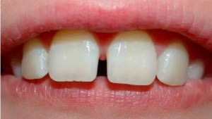 BPA: It's also bad for your teeth