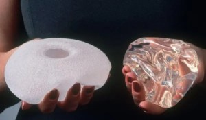 Every Breast Implant Operation in England to be recorded on a new Register
