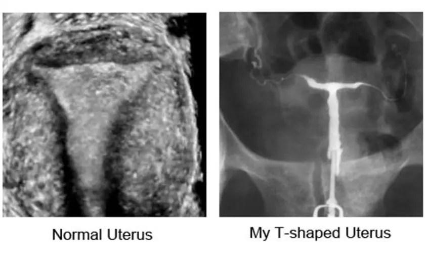 Normal vs. T-shaped Uterus