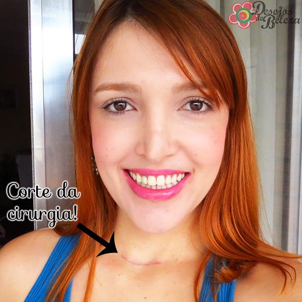 cicatriz-cirurgia-tireoide-iodoterapia-desejos-de-beleza