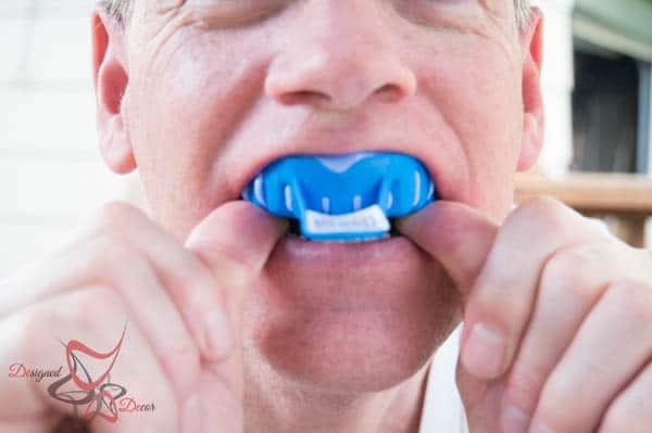 Smile Brililant~ Teeth Whitening System- Placing molds