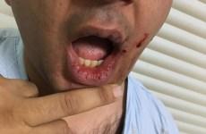 ICU Doctor Beaten By Patient's Relatives on Declaring Patient's Death
